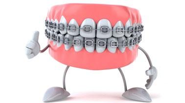 aparato-dental
